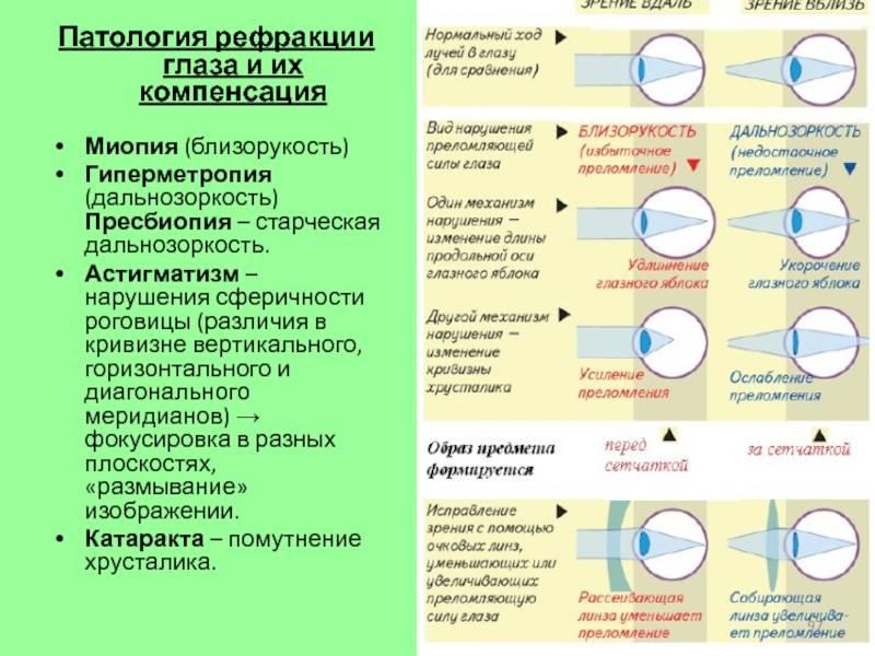 Лечение аномалий рефракции глаз