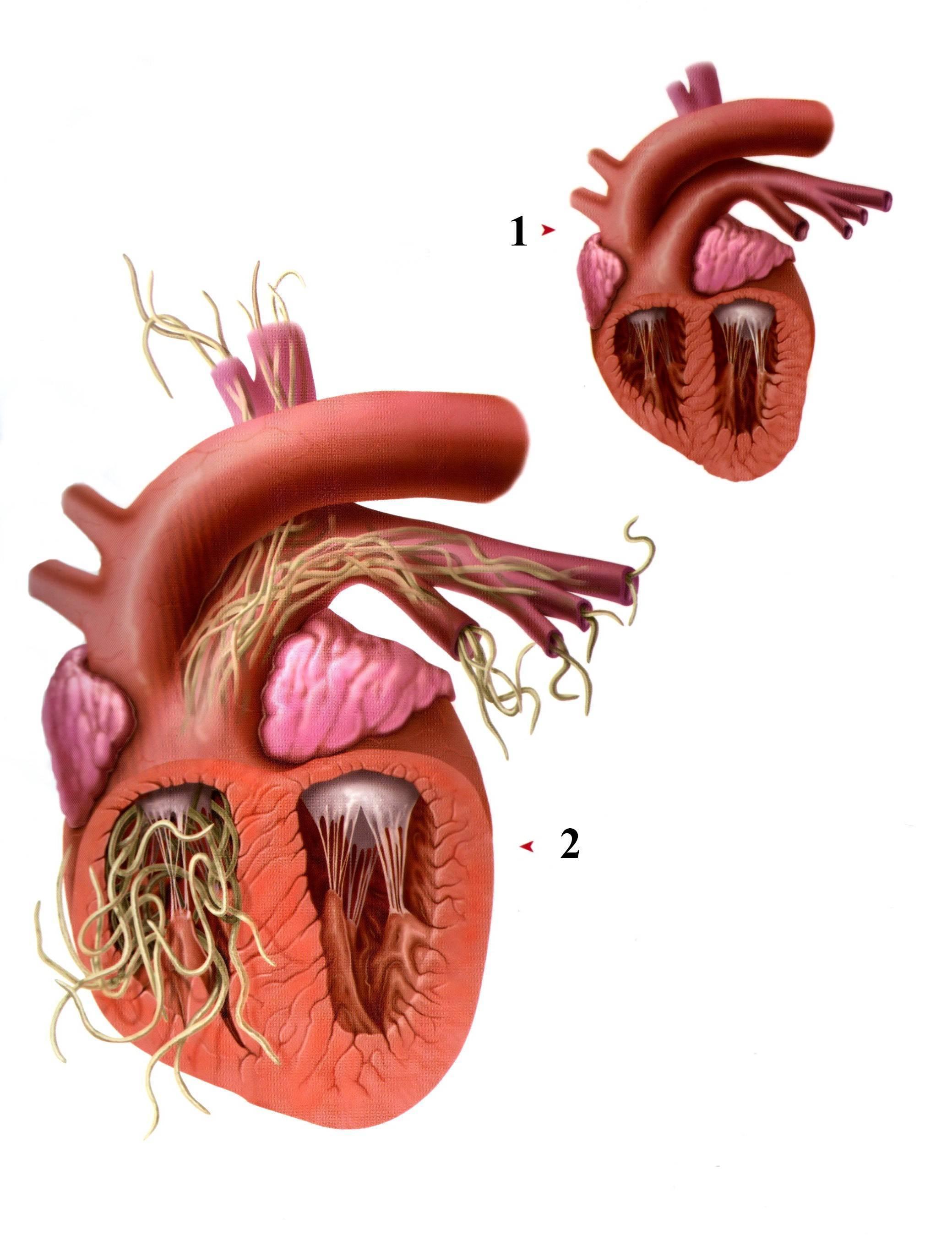 черви в сердце человека