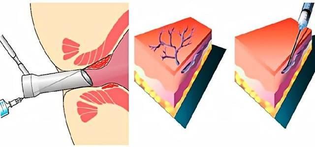 Склеротерапия геморроидальных узлов: что такое склерозирование геморроидальных узлов, достоинства и недостатки метода, возможные осложнения