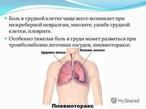 сильный кашель и боль в грудной клетке