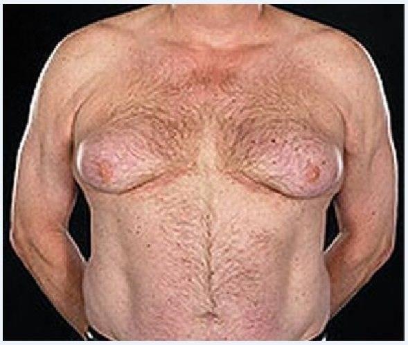 Избавление от ложной гинекомастии у мужчин