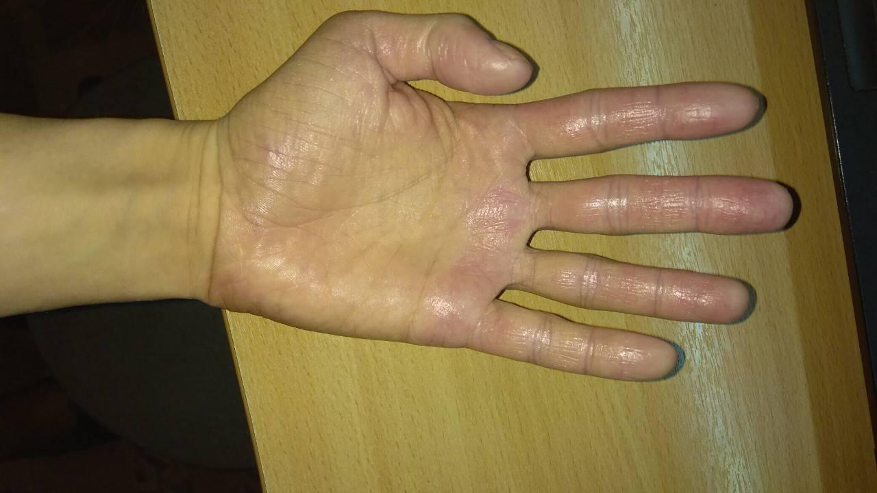 Дерматит на руках у взрослых и детей: симптомы, лечение
