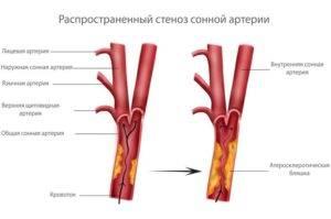 Атеросклероз бца (брахиоцефальных артерий): развитие, симптомы, диагностика, лечение, прогноз