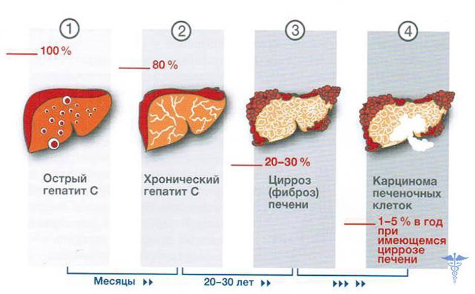 Фиброз печени диета питание