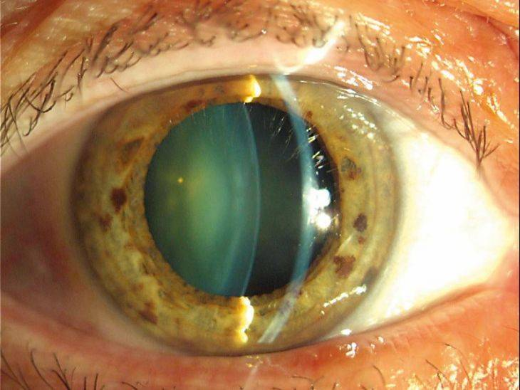 Диета при глаукоме глаза