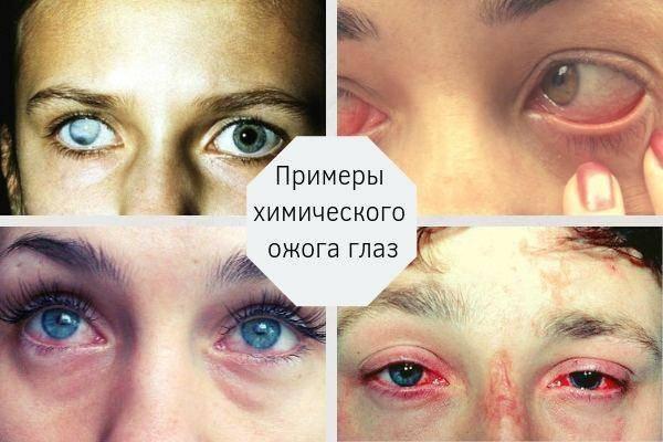 Лечение химического ожога глаз и правила первой помощи