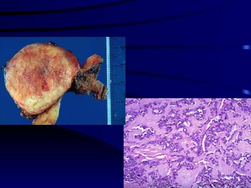 Как выявляют и как лечат медуллярную карциному щитовидки