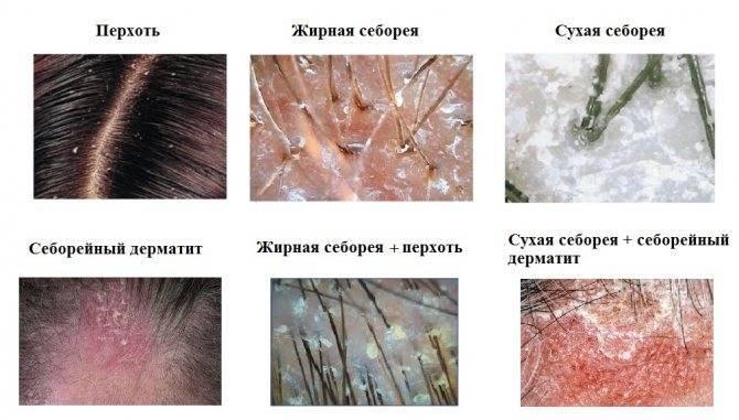 Как отличить псориаз от себорейного дерматита?