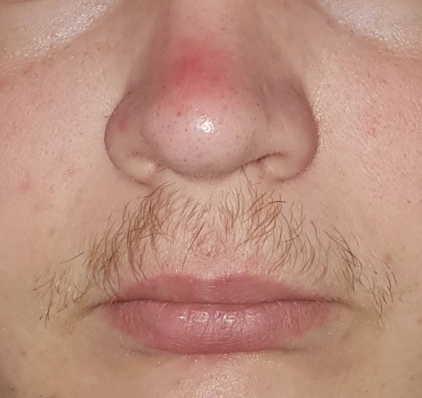 Болит кончик носа: причины, симптомы, лечение