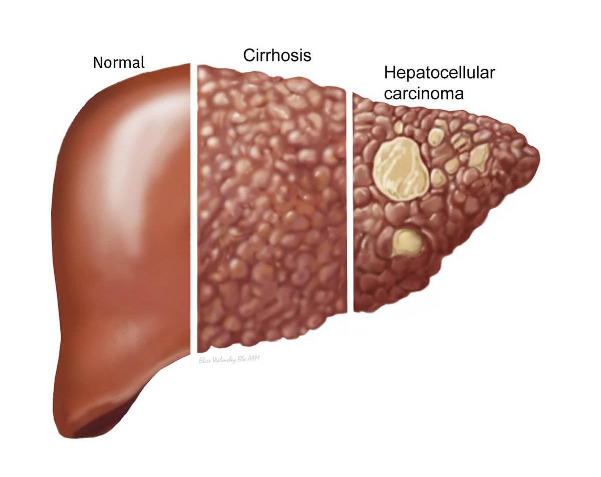 цирроз печени это рак или нет
