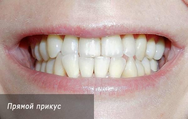 Как должна выглядеть красивая улыбка? правильный прикус зубов у человека