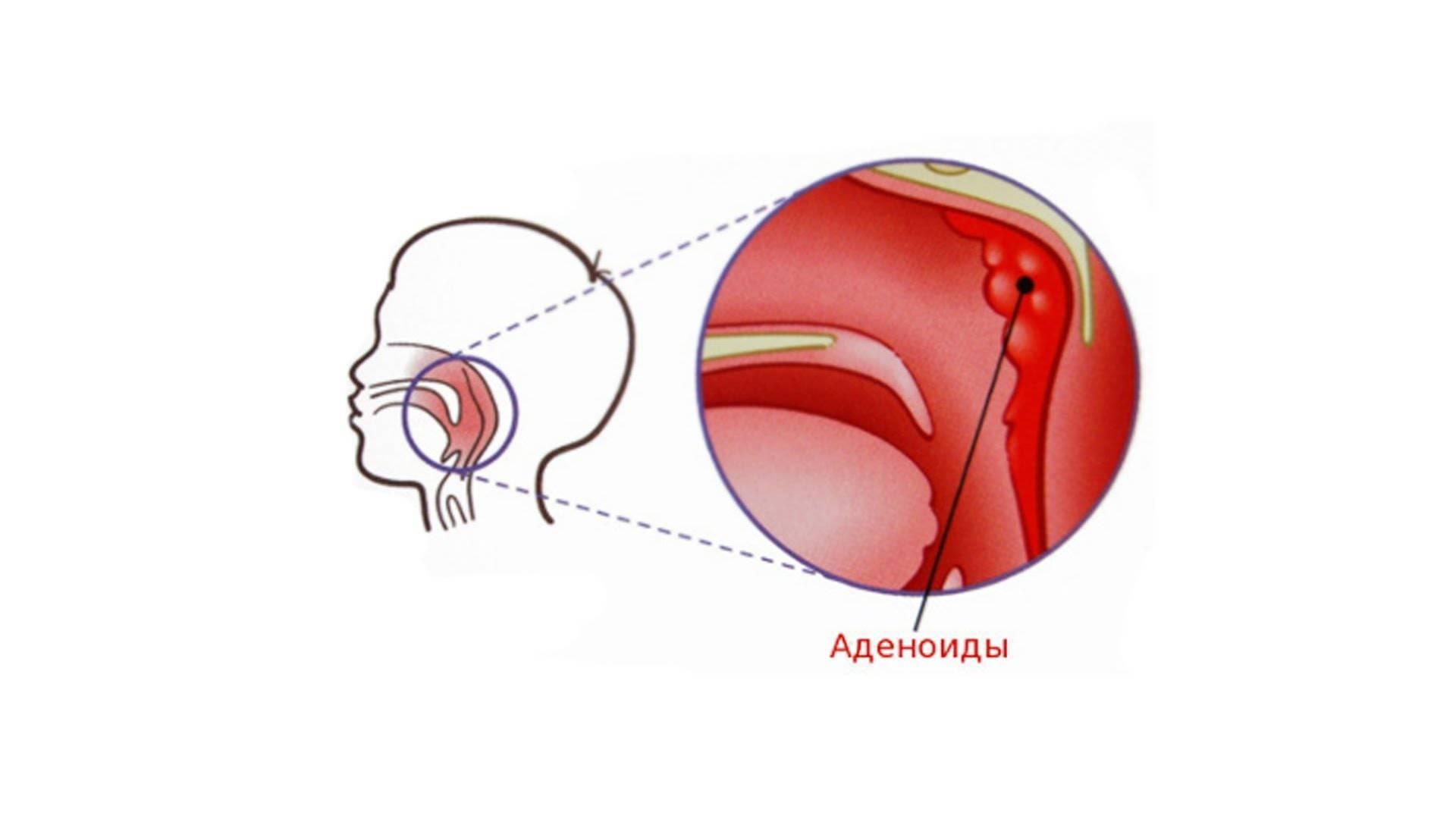как лечить аденоиды