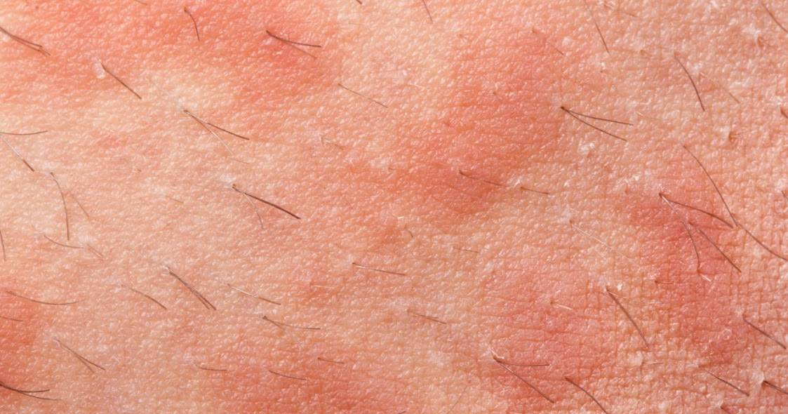 клещевой дерматит лечение