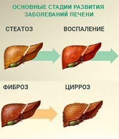 Ожирение печени: что это такое, можно ли вылечить, чем опасно, диета