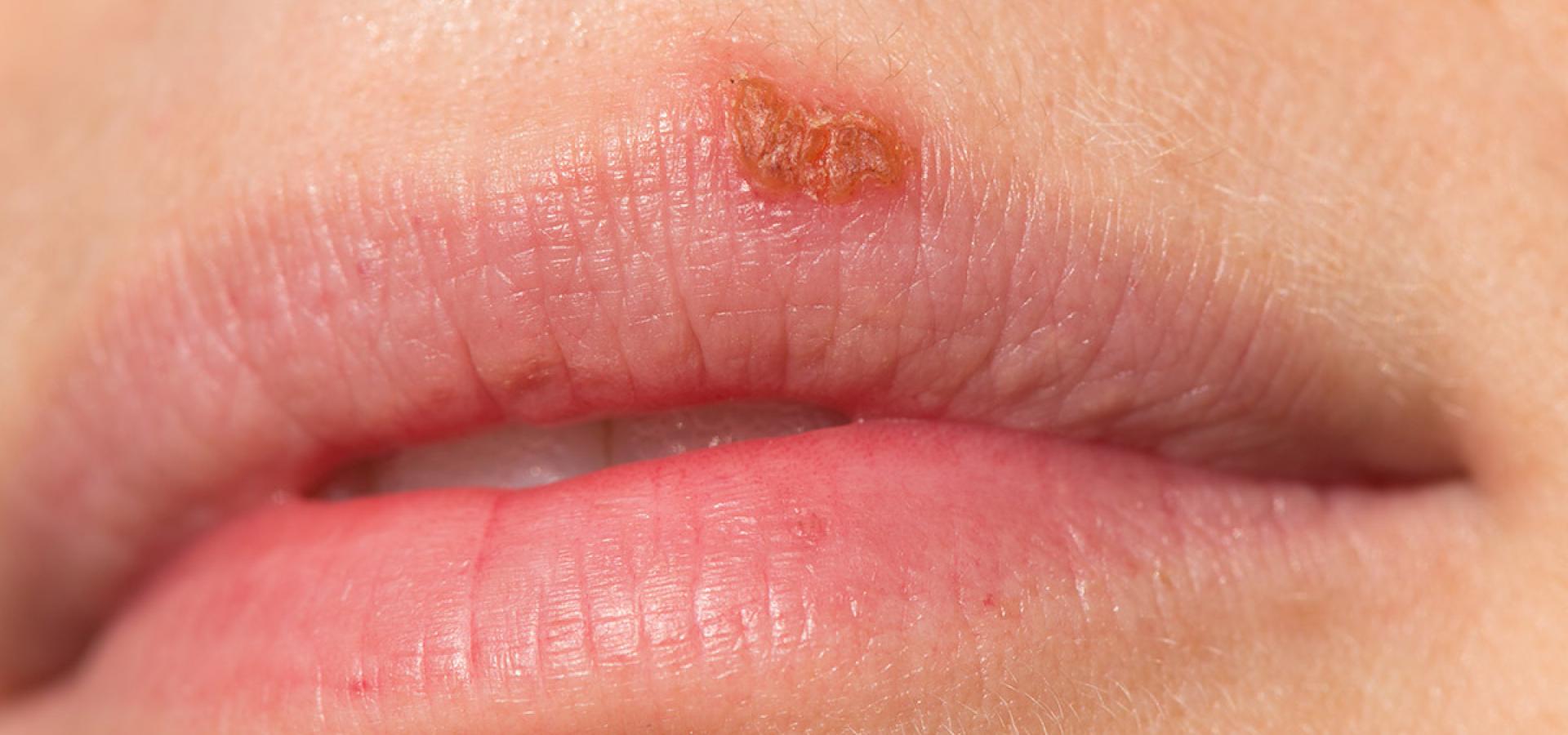 Почему появляется малярия на губах и как ее вылечить
