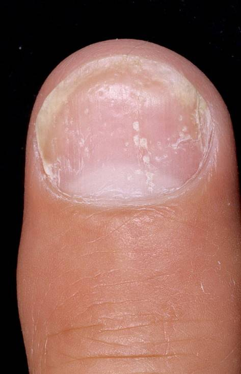 Как легко вылечить псориаз ногтей. причины болезни.