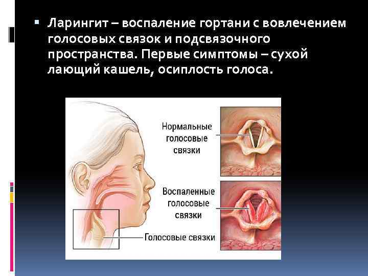 воспаление связок горла лечение