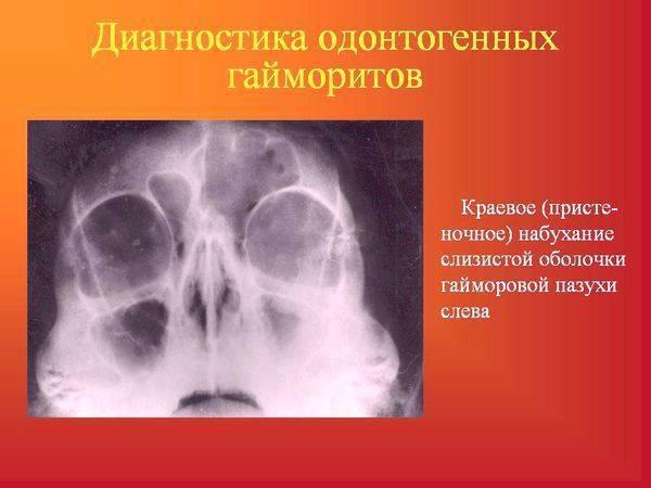 гайморит от больного зуба