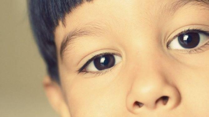 Нервный тик у ребенка моргание глазами лечение
