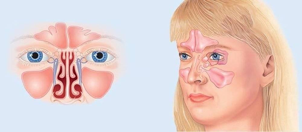 Симптомы, причины, лечение острого риносинусита у взрослых