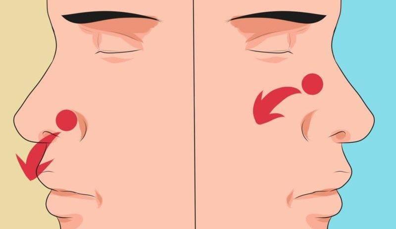 Сопли и насморк с кровью: почему возникают, связь с болезнями, проявления, принципы лечения