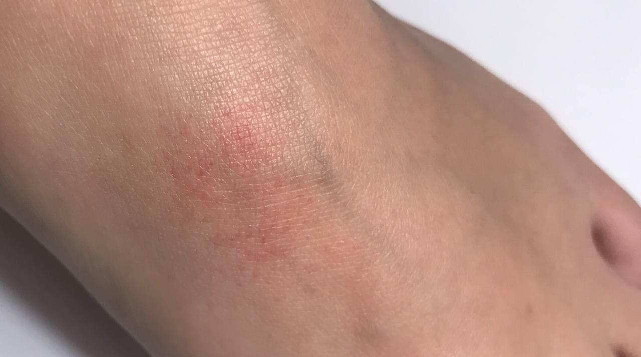 Герпес на ногах (фото): причины, симптомы и особенности лечения