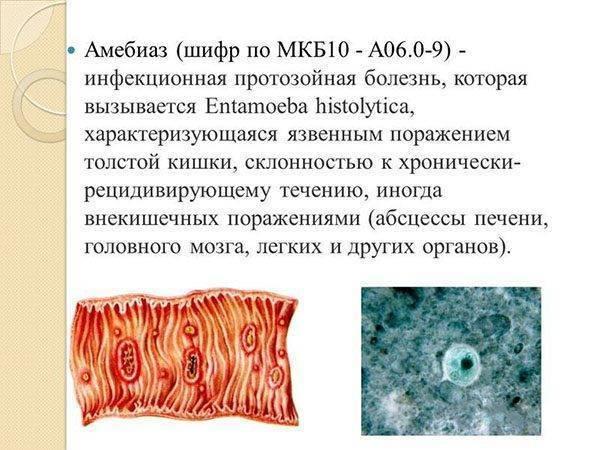 что такое кишечный амебиаз