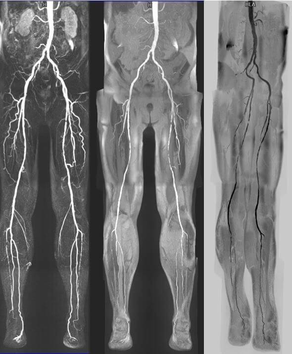 Атеросклероз коронарных артерий — причины, факторы риска, симптомы, диагностика, гаджеты для контроля холестерина, лечение - stevsky.ru - обзоры смартфонов, игры на андроид и на пк
