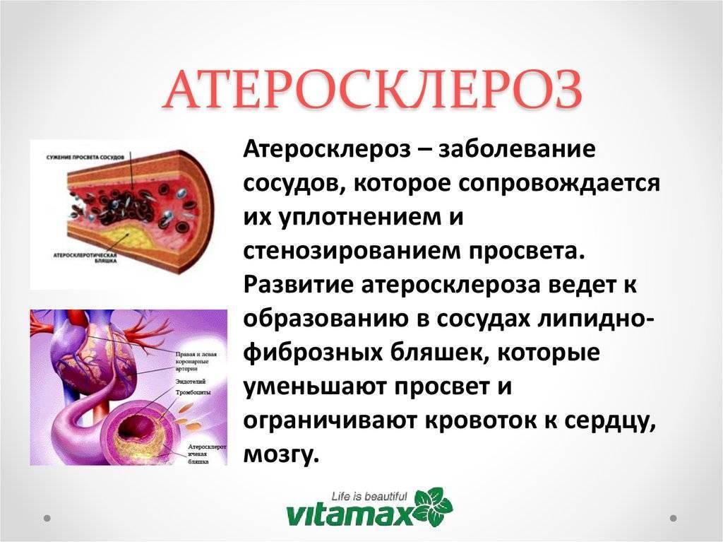 Лфк при атеросклерозе