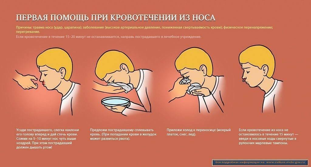 пмп при носовом кровотечении