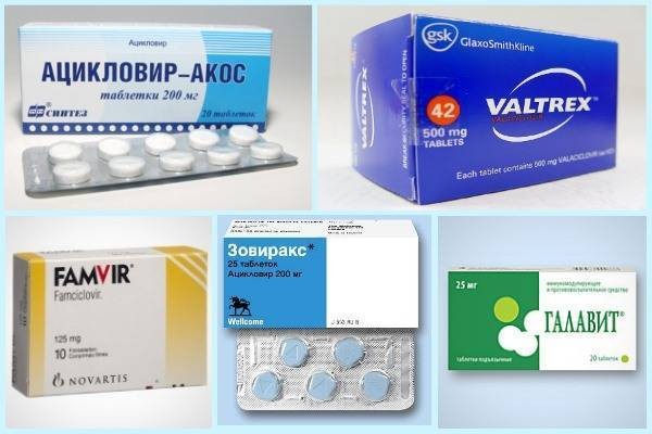против герпеса на губах таблетки