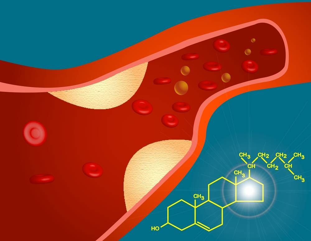Патогенез атеросклероза: нарушение липидного обмена