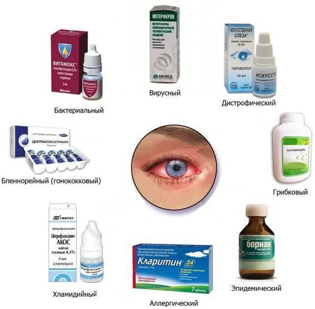 Воспаление глаз - чем промывать и лечить?