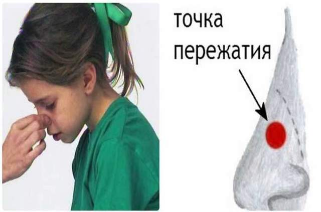 Причины выделения крови из носа при сморкании