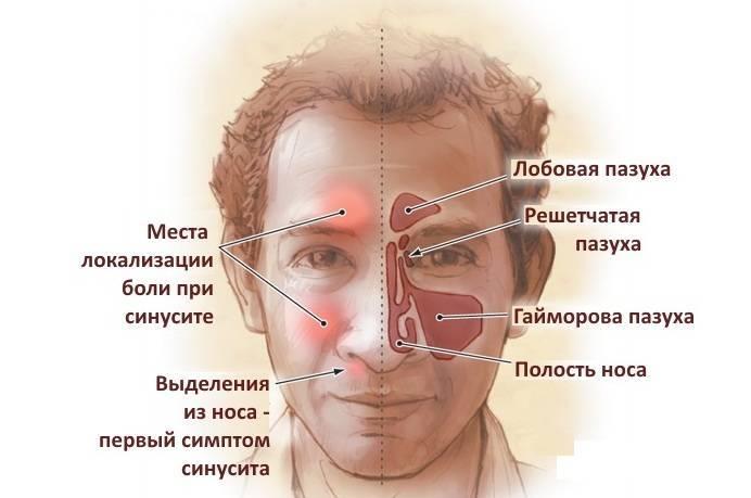 Почему и как болит голова при гайморите