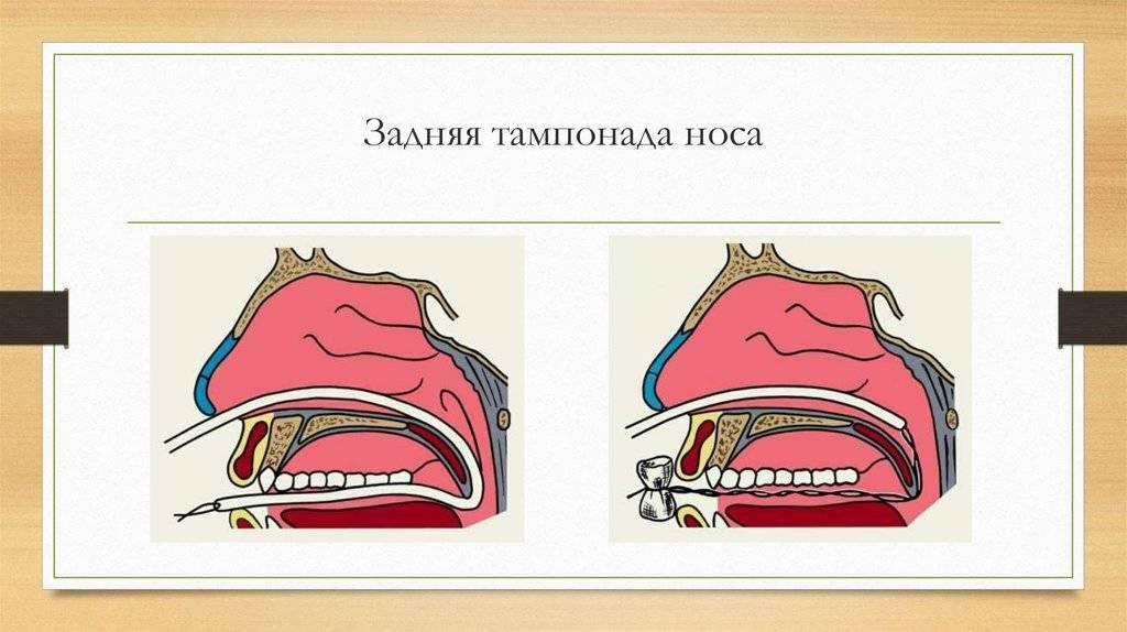 Как правильно сделать турунды в нос для лечения гайморита?
