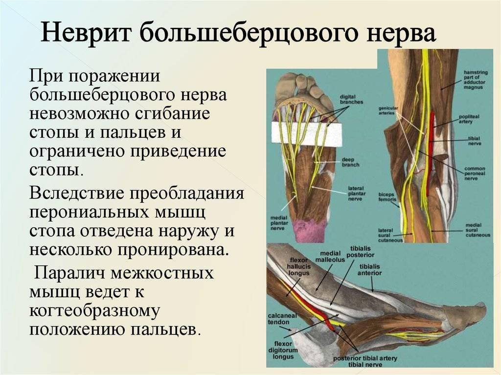 Лечение неврита тройничного нерва