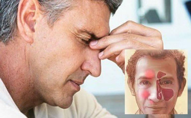 Лечение фронтита в домашних условиях