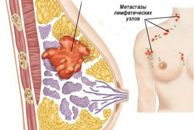 как определить опухоль молочной железы