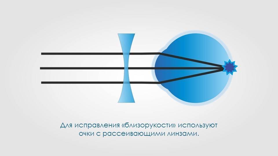 """Склеропластика глаз у детей - что это такое, за и против, отзывы и цены на операцию - moscoweyes.ru - сайт офтальмологического центра """"мгк-диагностик"""""""
