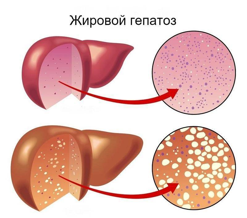 чем лечить жировой гепатоз печени народными средствами