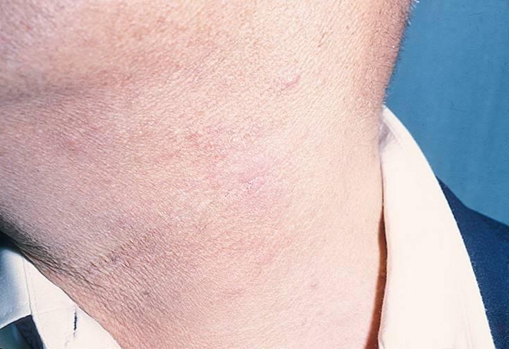 гусеничный дерматит лечение