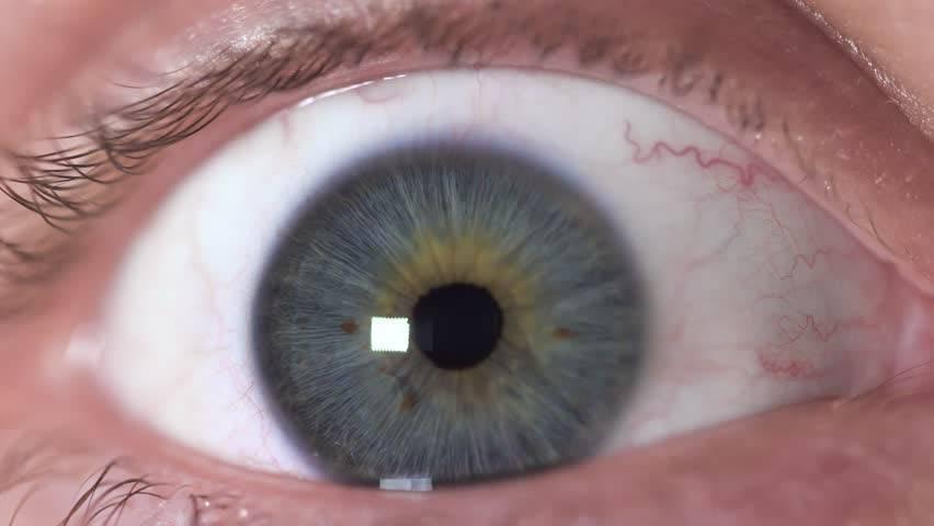 Черные точки в глазах: причины и лечение явления