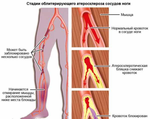 образ жизни атеросклерозе