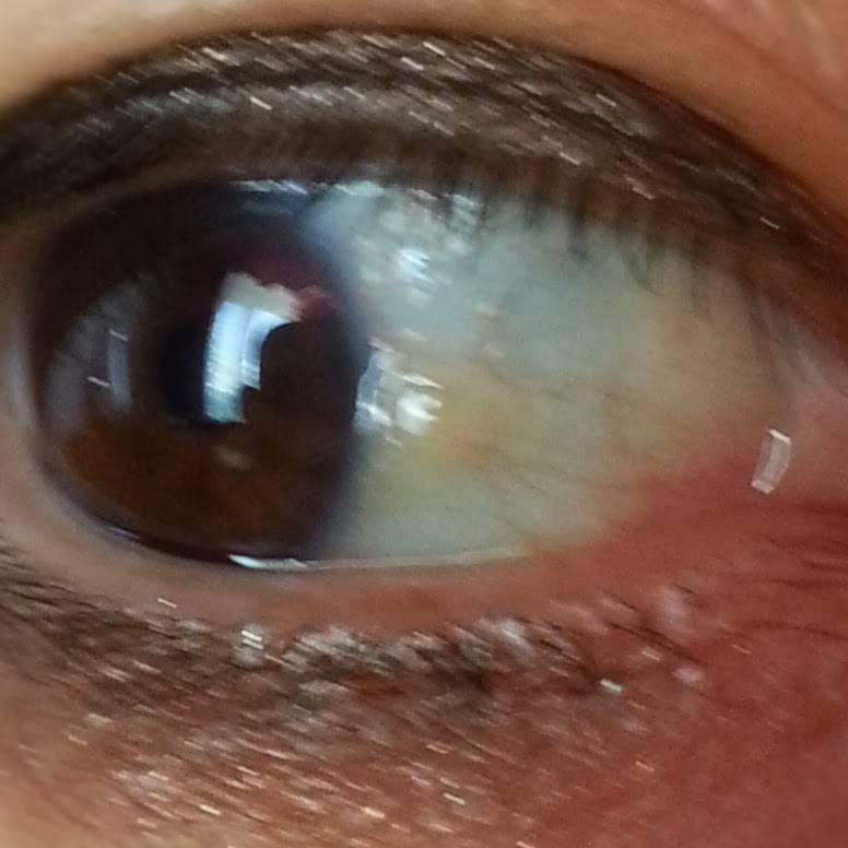 Пузырек в глазу