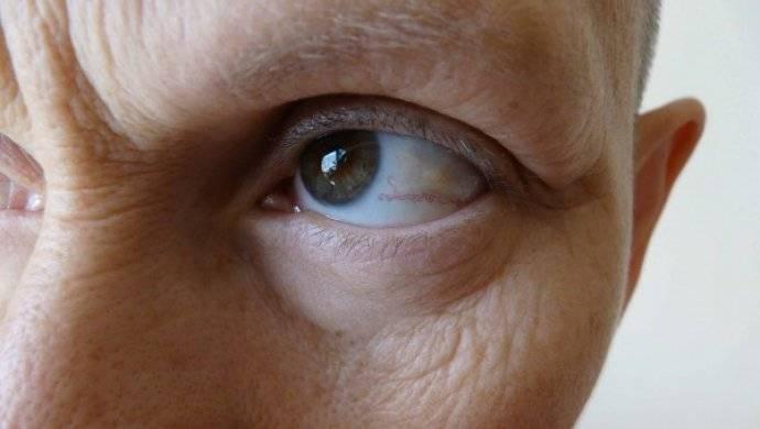 Пелена перед глазами, причины белого и темного тумана, лечение