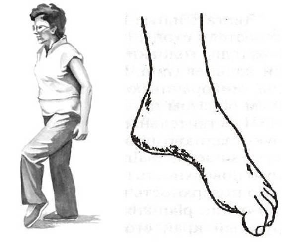 Невропатия большеберцового нерва