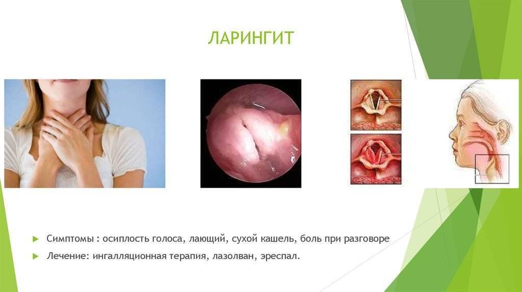 ларингит симптомы у детей