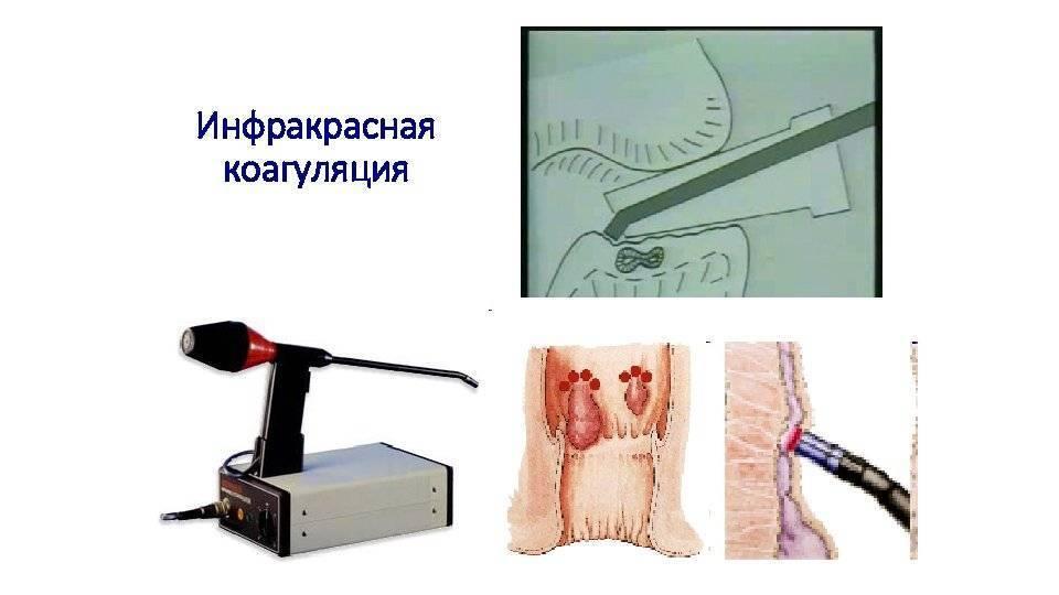 электрокоагуляция при геморрое