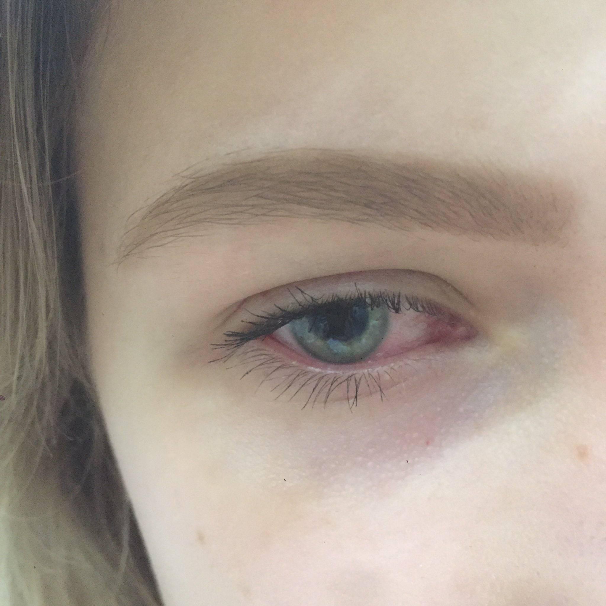 Почему глаза красные после сна. покраснения глаз после сна. красные глаза не повод для тревоги